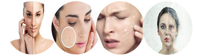 Những biểu hiện của làn da thiếu ẩm